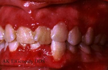 Viral Infections of the Mouth: Overview, Human Herpesvirus, Human