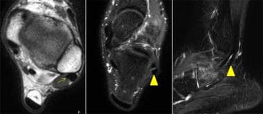 Appearance of normal peroneal tendons on MRI. Axia