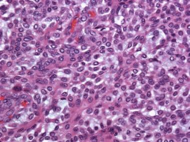 Epithelioid myoepithelioma. Note the epithelioid c