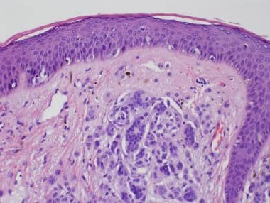 Intradermal melanocytic nevus. High-power photo of
