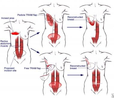 Breast cancer. Transverse rectus abdominis muscle