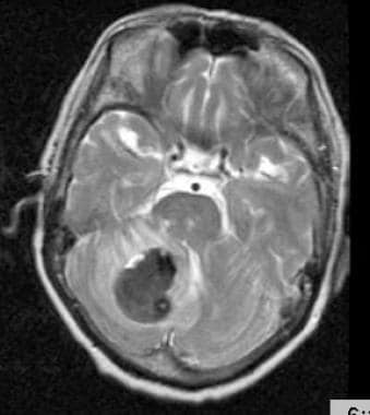 Cerebellar hemorrhage of a 62-year-old female with