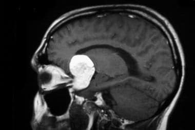 Sagittal T1-weighted image of the dermoid lesion i