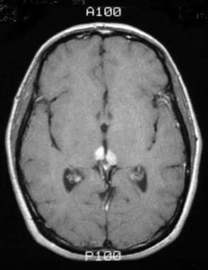 Pineal germinoma in a 30-year-old man. Axial T1-we