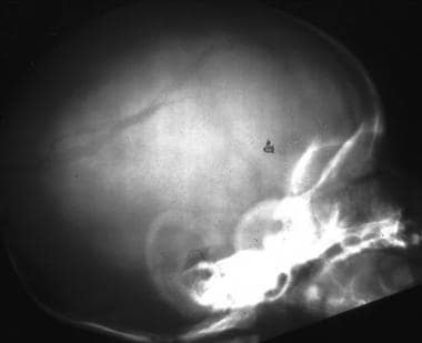 Lateral skull radiograph demonstrates a left-sided