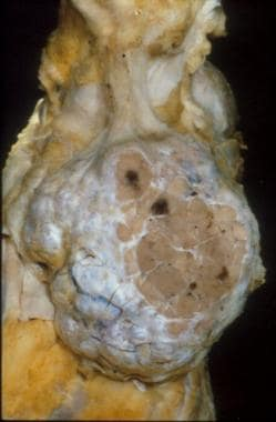 Gross appearance of a thymoma showing distinct mul
