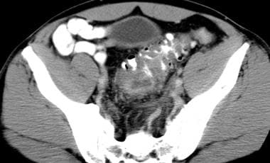 CT scan in a patient with diverticulitis demonstra