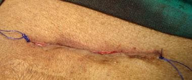 Open inguinal hernia repair. Skin approximated wit