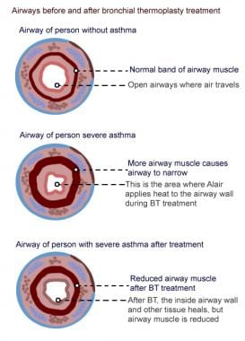 Airways and bronchial thermoplasty.