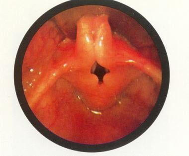 Laryngomalacia: The epiglottis is small and curled