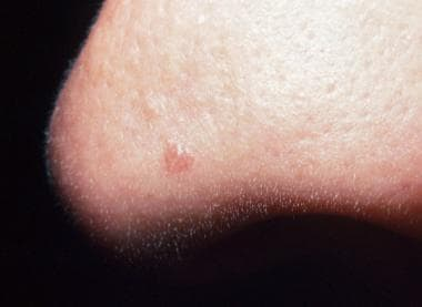 Fibrous papule of the nose. Courtesy of San Antoni