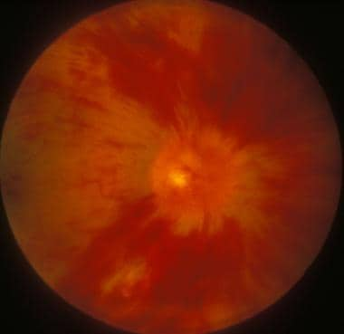 Central retinal vein occlusion - Diffuse retinal h