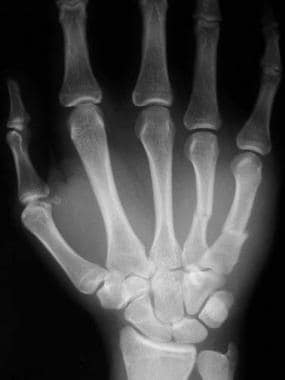 AP radiograph of displaced 4th and 5th metacarpal