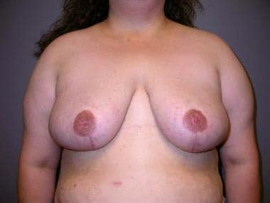 Postoperative photograph of the breasts of patient