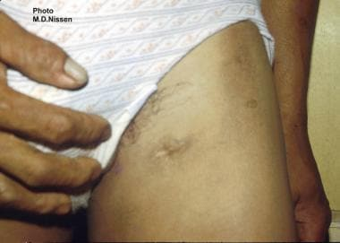Filarial abscess scar on the left upper thigh in a