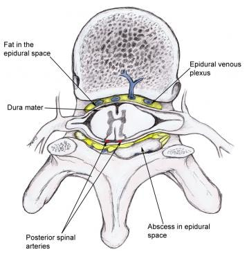 Abscess that compresses the spinal cord and its va