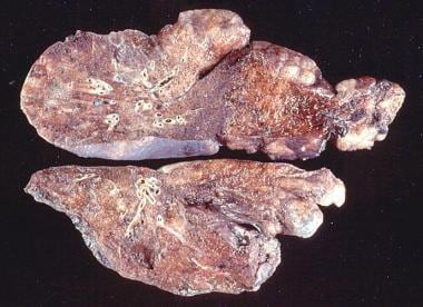 Gross pathology of emphysema shows bullae on the l
