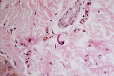 Microfilaria of Onchocera volvulus stained from sk