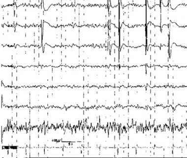 Irregularly repetitive spikes recorded at the dist
