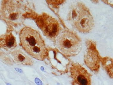 S-100 immunostain of physaliphorous cells demonstr