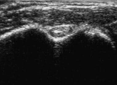 Normal biceps brachii tendon and surrounding tendo