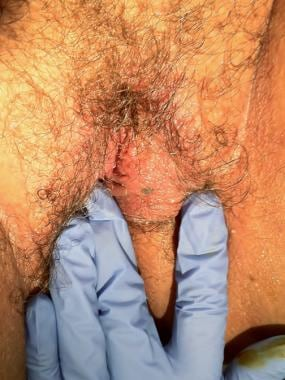 Vulvar lesion to biopsy.