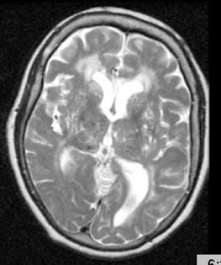 T2-weighted MRI through the thalami of a hypertens
