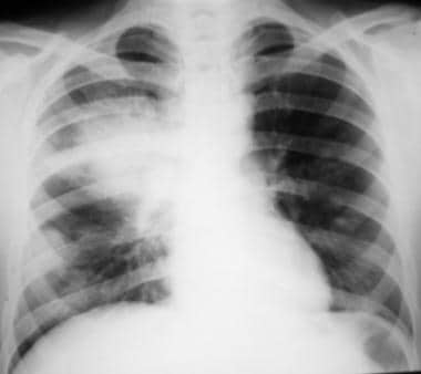 Posteroanterior (PA) chest radiograph shows a larg