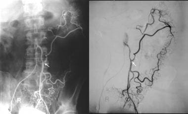 Inferior mesenteric angiogram in the same patient