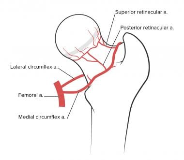 Avascular necrosis of the femoral head. Illustrati