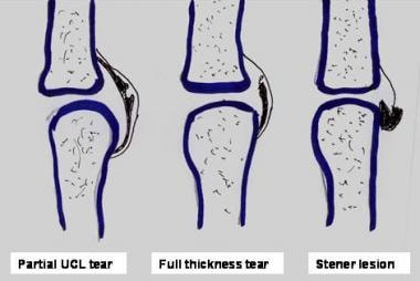 Line diagram showing classification of UCL tears.