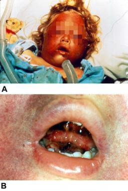 Traumatic asphyxia is produced by a sudden increas