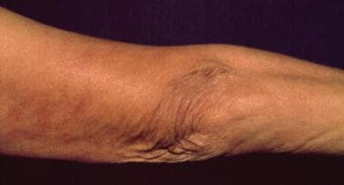 The atrophic skin lesions and fibrotic nodules of