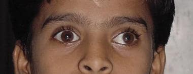 Patient with intermittent exotropia at distance on