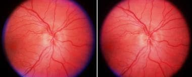 Anterior ischemic optic neuropathy of the right ey