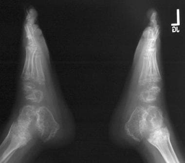 Lateral radiographs of the right and left feet.