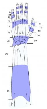 Regions of the dorsum of the hand have been divide