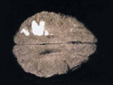 CT brain scan showing the appearance of a cerebral