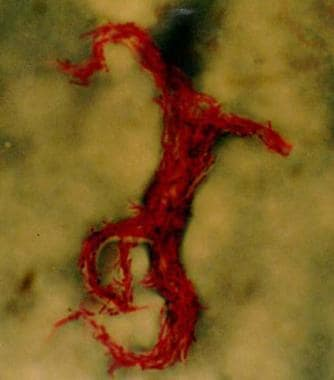 Acid-fast bacillus smear showing characteristic co