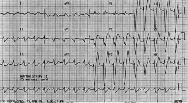 Widened QRS complexes in patient whose serum potas