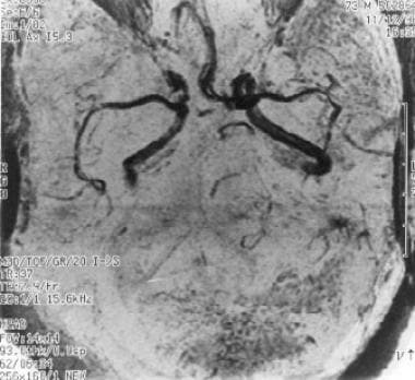 Magnetic resonance angiography demonstrating the a