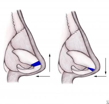 Dome division to narrow the nasal tip: Division an