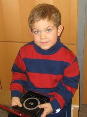 Young child with fragile X syndrome who does not h