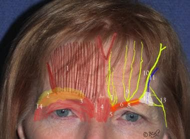 1. Frontalis muscle