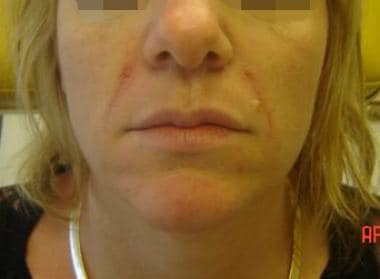 Patient 2. After photo. Dr. Bader injected Restyla