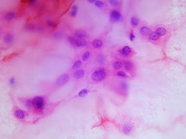 Cytologic preparation demonstrating characteristic