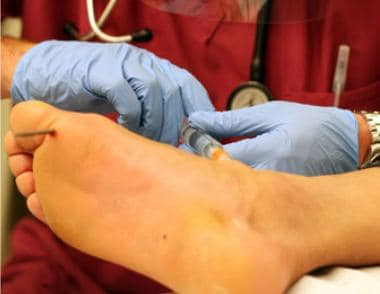 Placement of ankle nerve block for traumatic nail