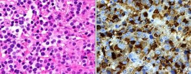 Prolactin (PRL)-secreting adenoma. Left: The cells