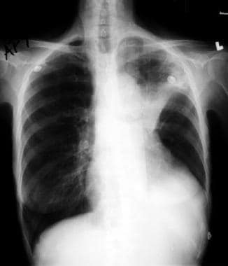 Left upper lobe collapse. This radiograph shows an