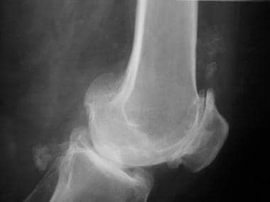 Lateral radiograph of the knee reveals patellofemo